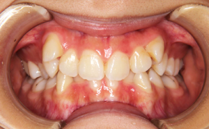 前歯のガタガタと八重歯が気になる