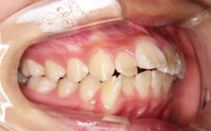 話しているときに前歯の出っ張りが気になる