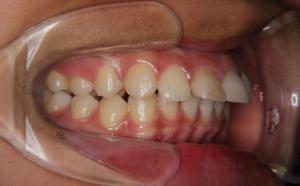 上の前歯の出っ張りと下の前歯の隙間が気になる