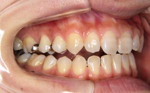 全部の歯で噛めるようにしたい。顎が歪んでいるのを治したい
