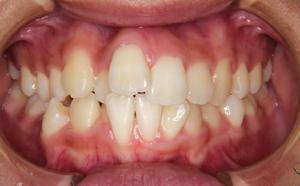 上下前歯の歯並びが気になる