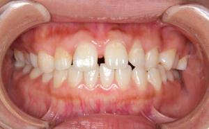 上の前歯の隙間が気になる