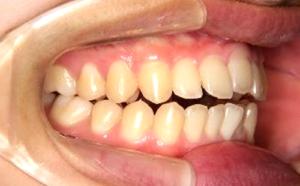 前歯が噛み合わない