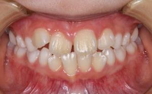 上下顎右側前歯の反対咬みとそれによる歯の動揺
