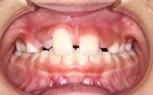 前歯のすき間