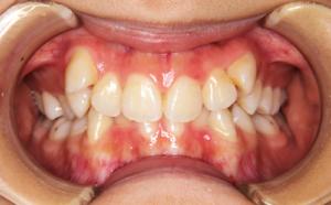 歯のガタガタと八重歯が気になる