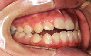 下顎の出っ張り、歯並びが気になる